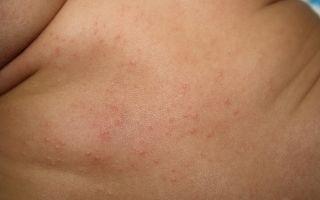 Сыпь у грудничка на спине, теле, коже: причины