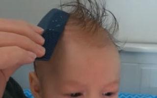 Себорейные корочки на голове у грудничка: как убрать