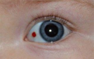Проблемы с глазами у грудничка: косоглазие, желтые глаза, лопнул сосуд