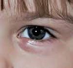 Ячмень у грудничка: симптомы болезни у ребенка, причины, чем и как лечить, профилактика