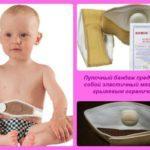 Бандаж для пупочной грыжи для новорожденных: виды и применение